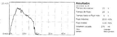 File Uroflowmetry Normal Es Png Wikimedia Commons