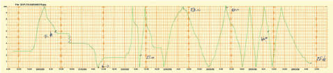 Example Of Rain Gauge Recorder Chart Download Scientific