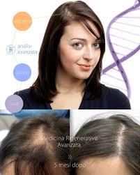 Cause Calvizie Femminile Hairclinic