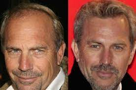 celebrity hair transplants are on the rise