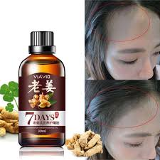 anti hair loss treatment nourish repair hair growth essence skin care conservation ginger essential oil 2018