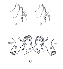 Diabetic Foot Exam Chart Monofilament Testing Archives Wcei Blog Wcei Blog