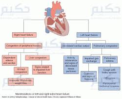 Pathophysiology Of Chf Left Vs Right Sided Heart Failure Heart Failure Nursing