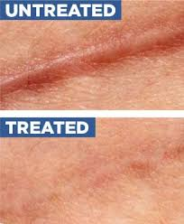 embrace scar therapy before and after. healed: an adhesive silicone sheet has been applied to the skin over a healing wound embrace scar therapy before and after i