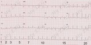 How To Calculate The Heart Rate On An Ekg