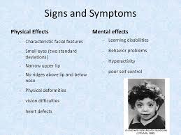fetal alcohol syndrome essay fetal alcohol syndrome essay thesis down s syndrome