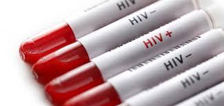 Xét nghiệm máu HIV có chính xác không ?