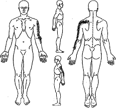 Body Chart Body Chart Of Reported Pain Download Scientific Diagram