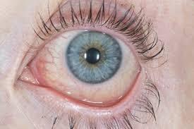 Doctors Note For Pink Eye Conjunctivitis Nhs