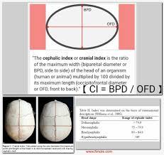 Cephalic Index Biparietal Diameter Occipitofrontal