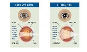 Is Eye Dilation Necessary In An Eye Examination