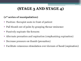 Brunnstroms Hand Recovery Stages