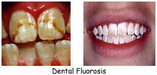Resultado de imagen de fluorosis