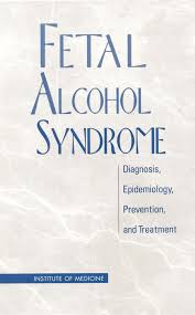 introduction fetal alcohol syndrome diagnosis epidemiology  looking for other ways to this