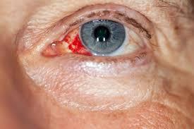 Red eye - NHS