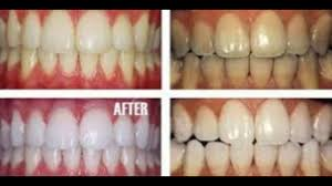 diy teeth whitening at home with baking soda you will not believe the results