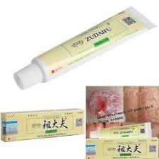 Portable China Creams Psoriasis Creams Curing Dermatitis And Eczema ...