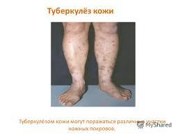 Презентация на тему Туберкулёз и его профилактика Врач  24 Туберкулёз кожи Туберкулёзом кожи могут поражаться различные участки кожных покровов