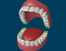 I've asked the local dentists the cost of a single tooth extraction without insurance and in total it would be almost 7 thousand dollars to remove them all. Wisdom Teeth Removal Facts You Need To Know About Extraction And Recovery Rozenberg Dental Nyc General Dentists
