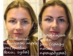 коррекция губ после татуажа в москве