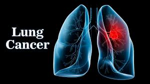 healthy lungs the effects of long term marijuana smoking thus far there has been no proven correlation between light to moderate marijuana use and lung cancer marijuana smoke does contain some of the same