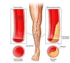 vascular leg pain vs leg pain what s