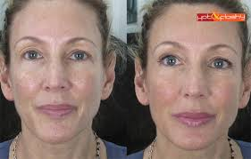 bronzer makeup before and after. left: no makeup right: perricone md (serum foundation, bronzer before and after u