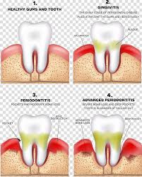 Four Tooth Chart Periodontitis Disease Gums Periodontology