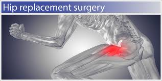 hip replacement surgery and scar