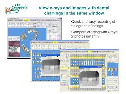 Eaglesoft Quick Charting Total Dental Software All Inclusive Patient Charting And