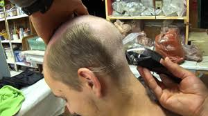 Baldness Hair Style ozzies bald haircut youtube 5593 by wearticles.com