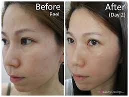 Glycolic acid peel at home which is the best
