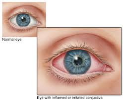 Conjunctivitis | Pink Eye | Signs and Symptoms | CDC