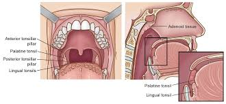 Tonsil Size Chart Tonsil Cancer Head And Neck Cancer Info For Teens