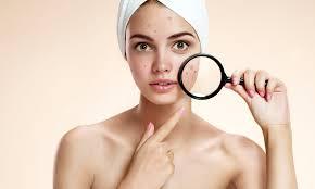 Hasil gambar untuk wajah wanita berjerawat