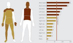 Body Injury Chart Custom Diagrams Illustrate Your Data Results