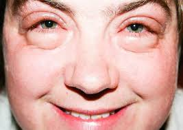 puffy eyes can destroy your looks photo wellsphere