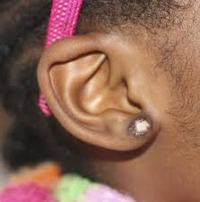 Nine Month Old Patient With Bilateral Earlobe Keloids Case Reports