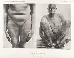 Image result for black eunuch