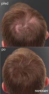 řídké Vlasy Dámské účesy Pro Málo Vlasů