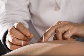 Acupuncture for Eczema & Skin Disorders   Pacific College