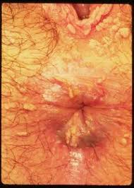 Genital Warts Caused by the Human papilloma virus  HPV    ppt download Get To The Point   Tumblr