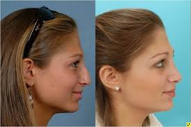 Cosmetic rhinoplasty is not covered by insurance; Rhinoplasty Johns Hopkins Facial Plastic And Reconstructive Surgery