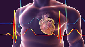 أبرز علامات وأعراض النوبة القلبية الصامتة! - RT Arabic
