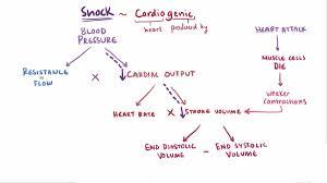 Shock Circulatory Wikipedia
