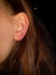 zwelling oorschelp