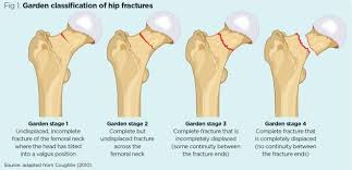 hip fracture 2 nursing care from