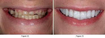 bulimic people teeth.  People Restorative Teeth On Bulimic People Teeth