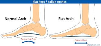 Flat Footed Flat Feet Or Pes Planus Or Fallen Arches Causes Symptoms Treatment