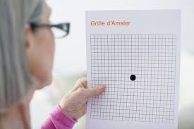 Eye Chart Test For Macular Degeneration Amsler Grid Visual Field Test Uses Procedure Results